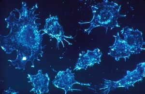 Cancer_cells_%281%29