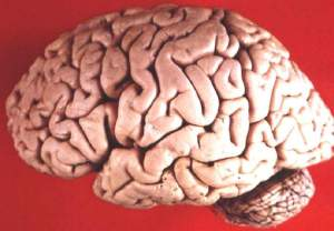 Human_brain_lateral_view%281%29