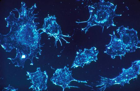 800px-Cancer_cells_(1)